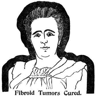 Fibroid Tumors Cured
