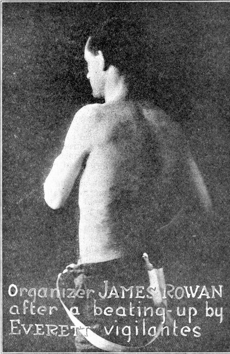 Organizer James Rowan; Showing his back lacerated by Lumber Trust thugs.
