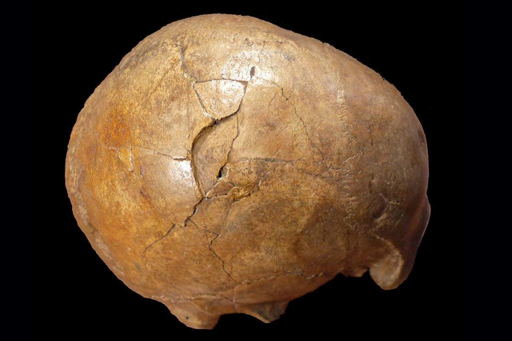 Cioclovina Man Skull