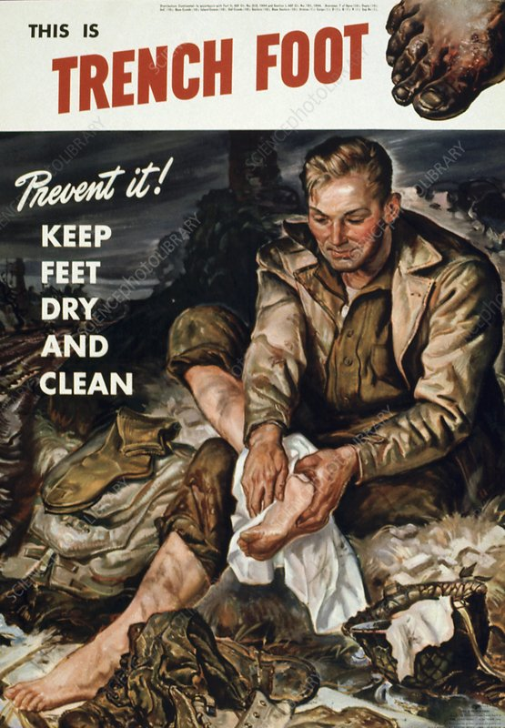 World War II Propaganda Poster - This Is Trench Foot